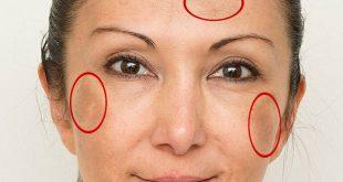 cilt lekeleri için doğal yüz maskeleri