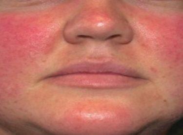 expigment jel kremin yüzde oluşturduğu kızarıklık, kimyasal yanık , acı ve batma hissi, soyulma, kuruma, dökülme