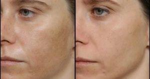 madecassol merhemin cilde faydaları