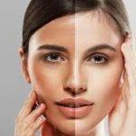 Cilt Beyazlatma Yöntemi olarak Kullanılabilecek Yüz Beyazlatma Maskeleri